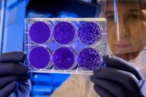 Perché virus e batteri NON sono la stessa cosa?